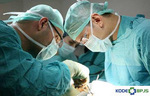 Biaya Operasi Lipoma