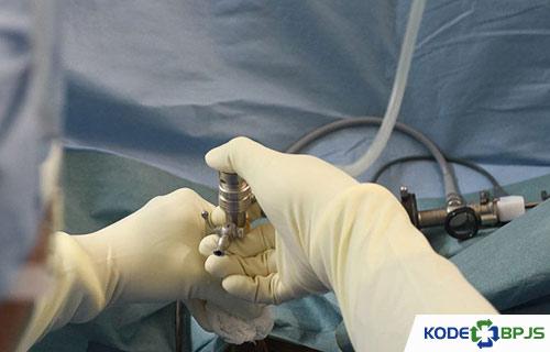 Biaya Operasi Prostat