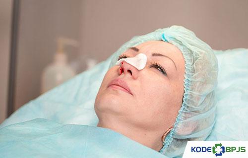 Biaya operasi Polip Hidung
