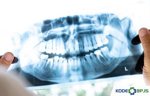 Pencegahan Impaksi Gigi