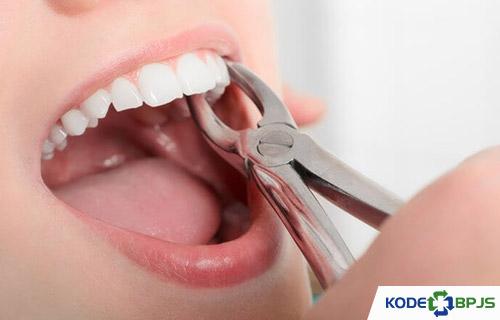 Uang Dibutuhkan Operasi Gigi