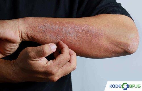 Kode ICD 10 Dermatitis