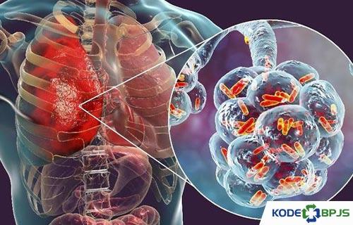Kode ICD 10 Pneumonia Penyebab Gejala Pengobatan
