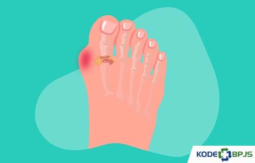 Apa Itu Gout Arthritis