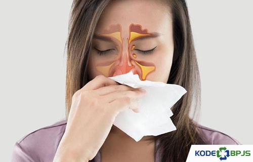Apa Itu Sinusitis