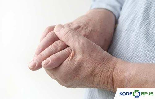 Gejala Gout Arthritis