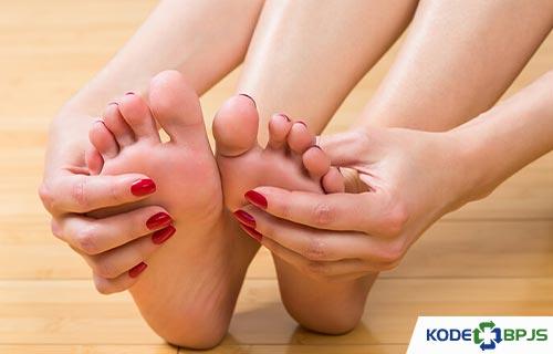 Kode ICD 10 Gout Arthritis Penyebab Gejala Pengobatan