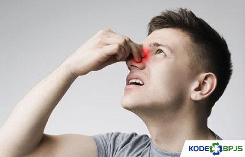 Kode ICD 10 Sinusitis