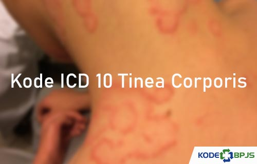 Kode ICD 10 Tinea Corporis