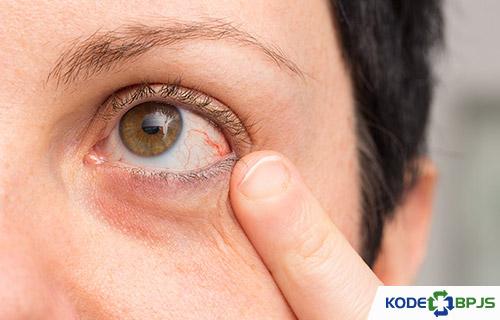 Apa Itu Ablasio Retina