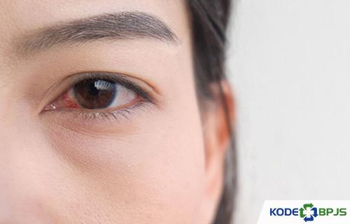 Penyebab Ablasio Retina