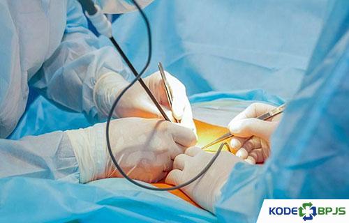Pengobatan Pencegahan Kista Ovarium