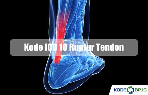 Kode ICD 10 Ruptur Tendon