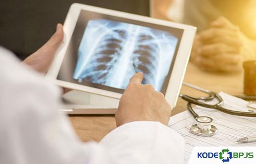 Diagnosa TB Paru